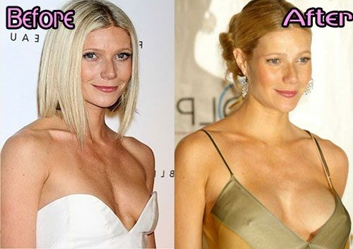 Gwyneth Paltrow plastic surgery breast implants